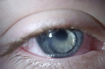 b- lens prolapse