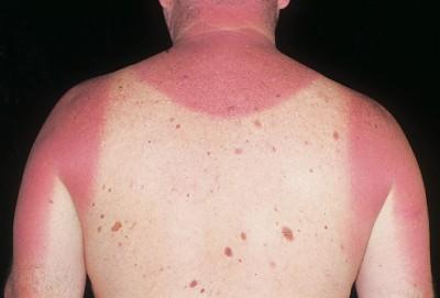 b- sunburn