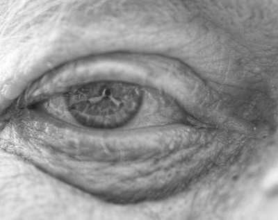 ageing eye loses transparency