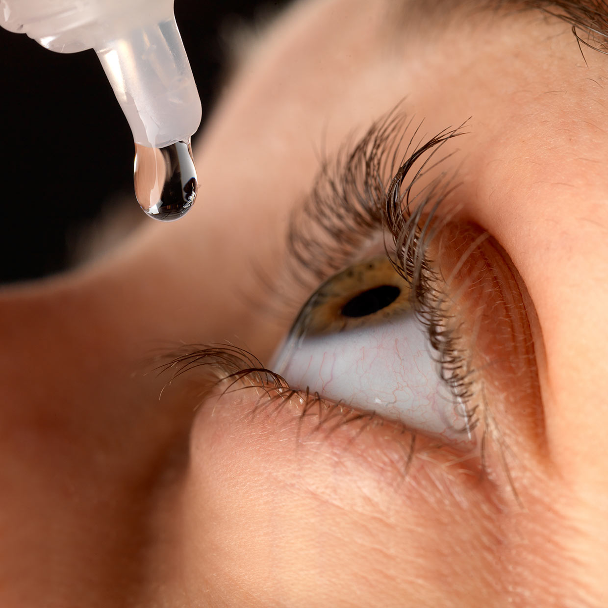 Eye infections – make your optometrist your first port of call