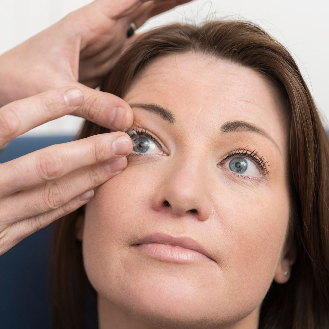 Multifocal contact lenses for ageing eyes